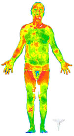 thermography men and women